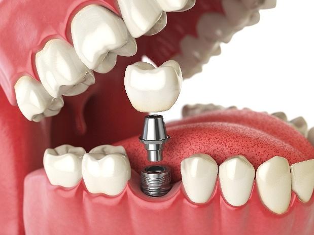 自分の歯のように食事を楽しむことができる人工の歯