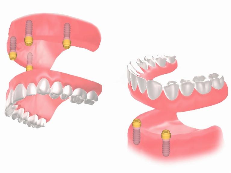 インプラント+入れ歯という選択肢も
