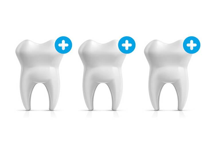 歯を強化し虫歯になりにくい歯に