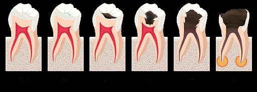 虫歯の進行状態・治療法